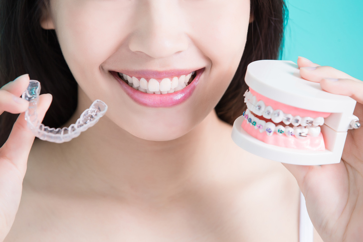 Why Your Dentist May Recommend Invisalign