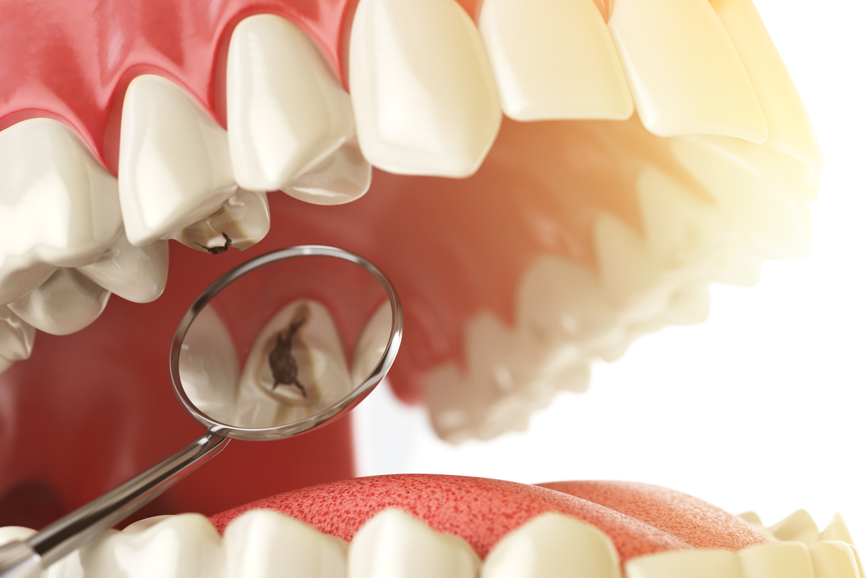 Dedicated Dental Blog | Cavity Removal Tips