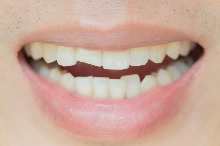 What to Do if You Crack or Chip Your Teeth