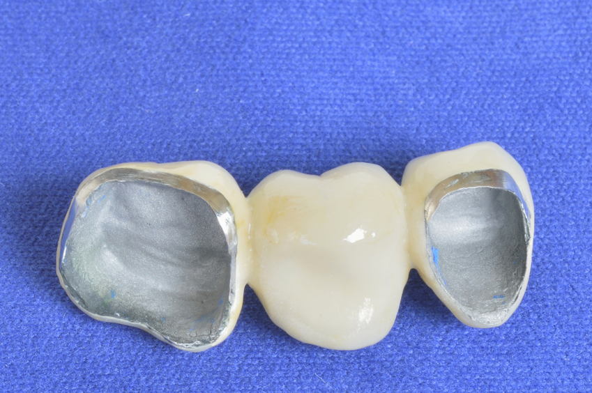 Dental Crowns: what are they and How Do They Help our Teeth?