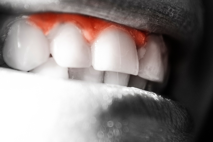 What Your Dentist Says About Your Gums