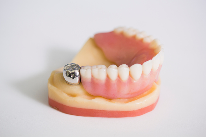 What are the Differences Between a Dental Crown and a Dental Implant?