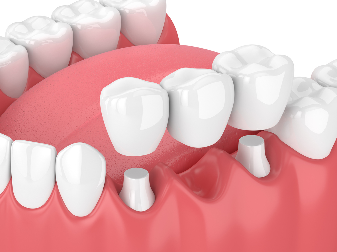 Why Your Dentist May Recommend Dental Bridges