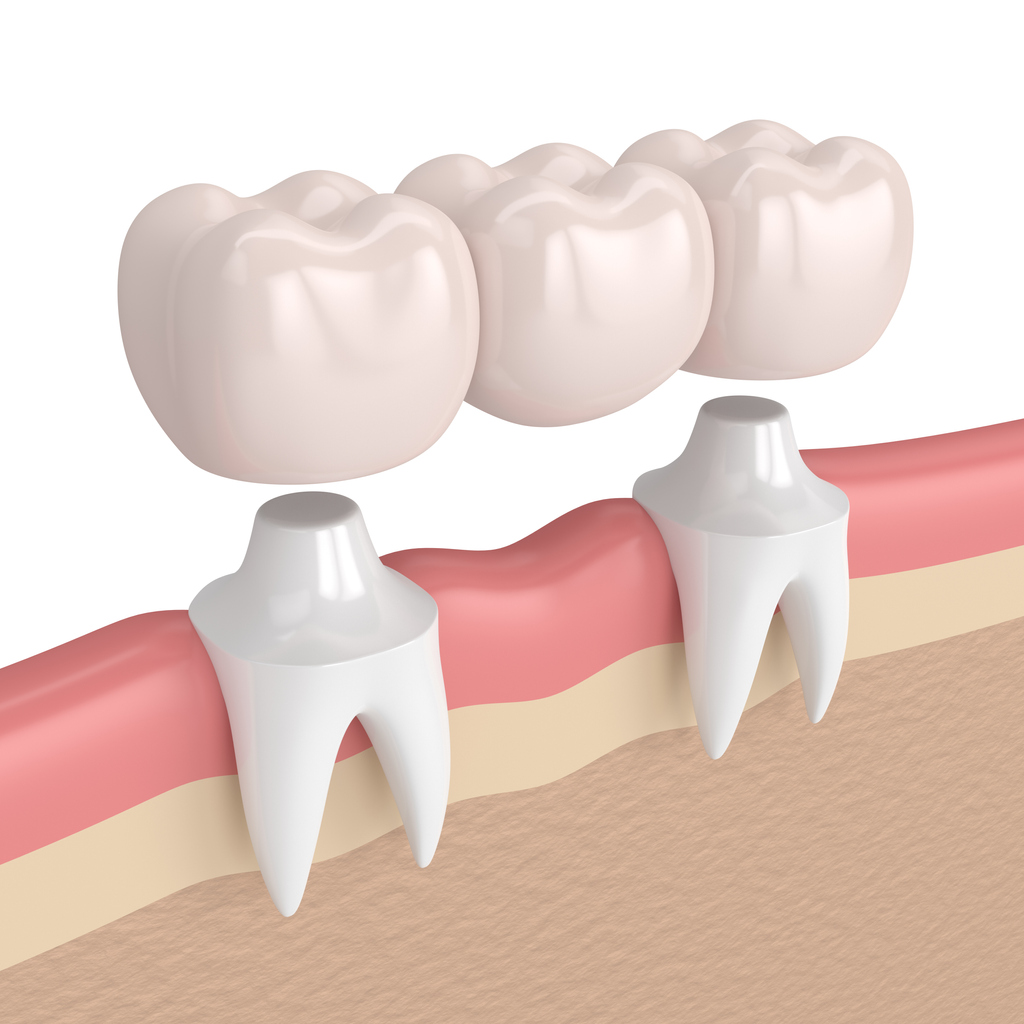 Benefits of Dental Bridges