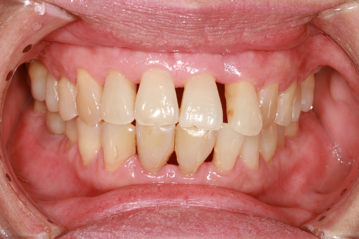 How to Treat Gum Recession