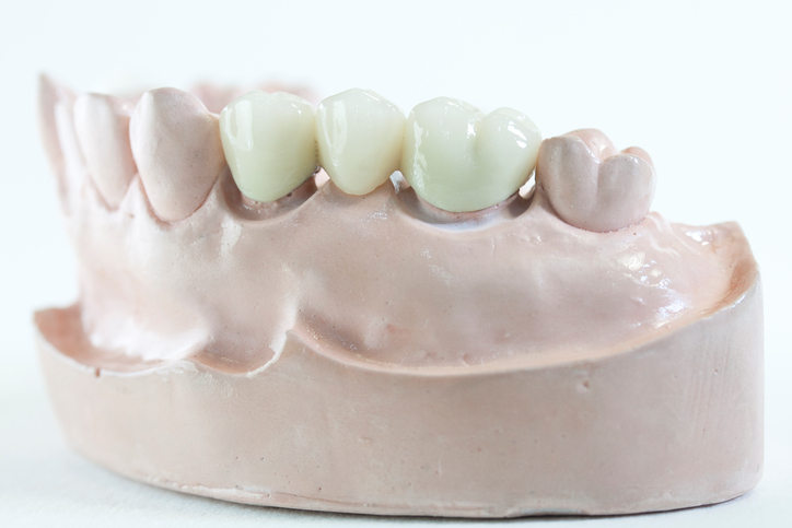The Complete Guide to Dental Bridges