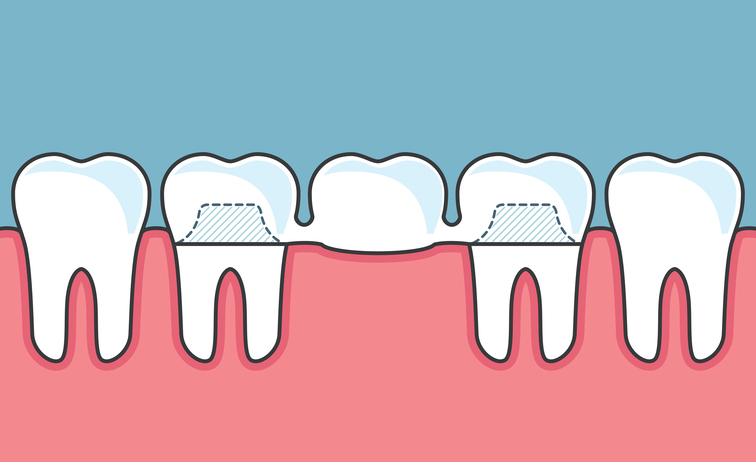 Dental Bridges vs. Dental Crowns: Which one is right for me?
