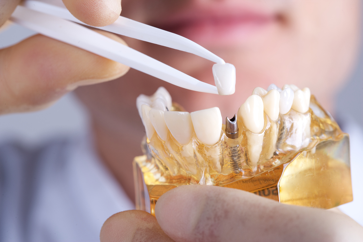 Should I Get a Tooth Implant?