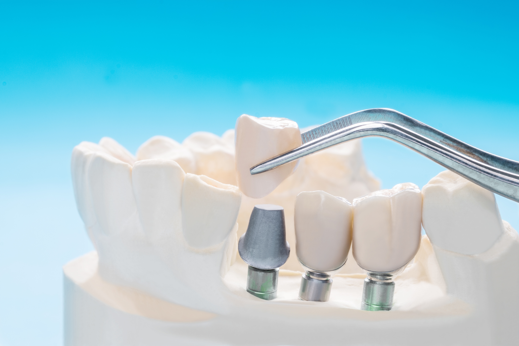Which Is Better: Dental Implants or Veneers?