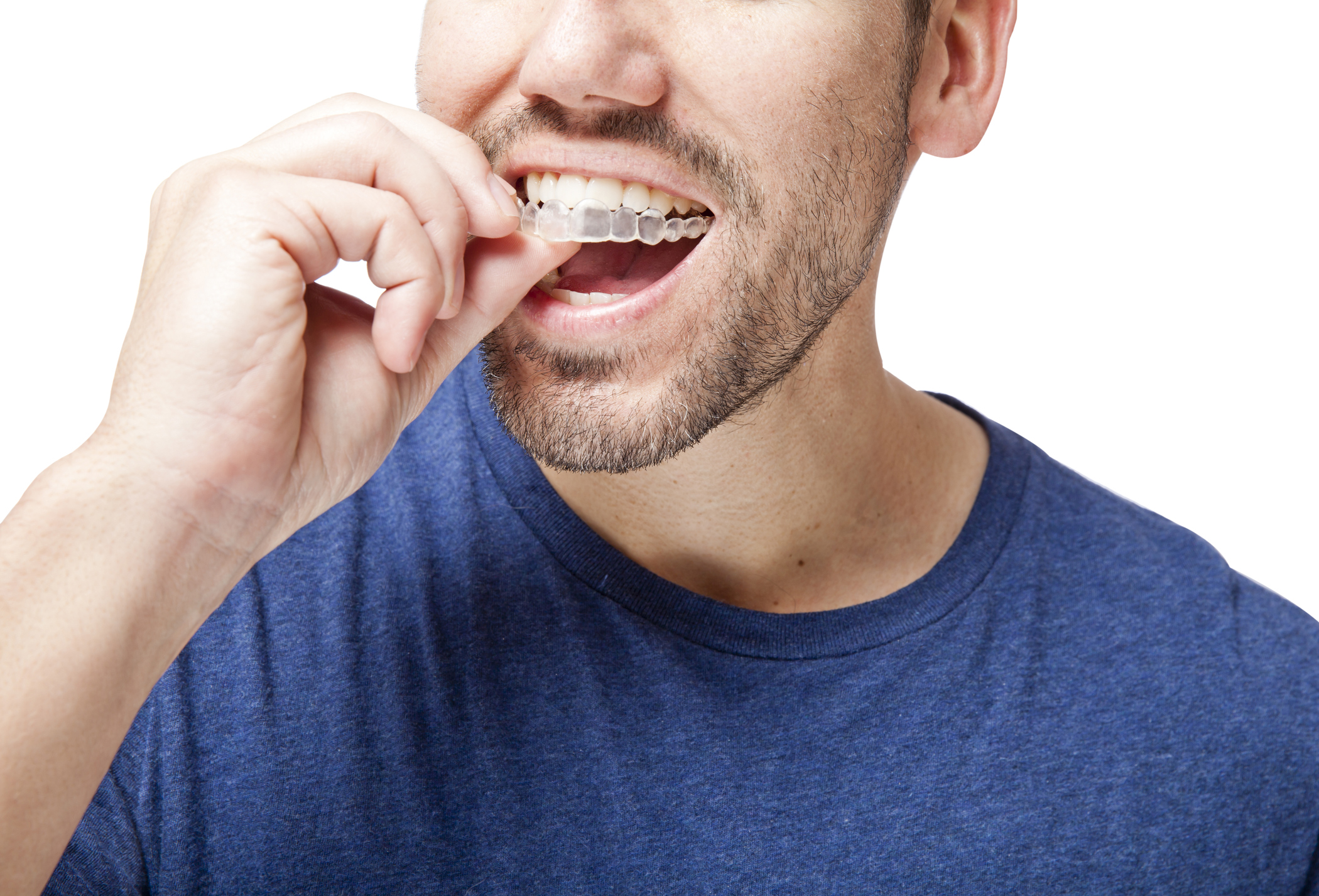 All About Invisalign