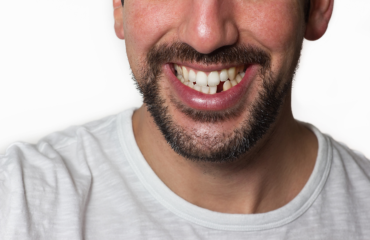 Is Having Missing Teeth Normal?