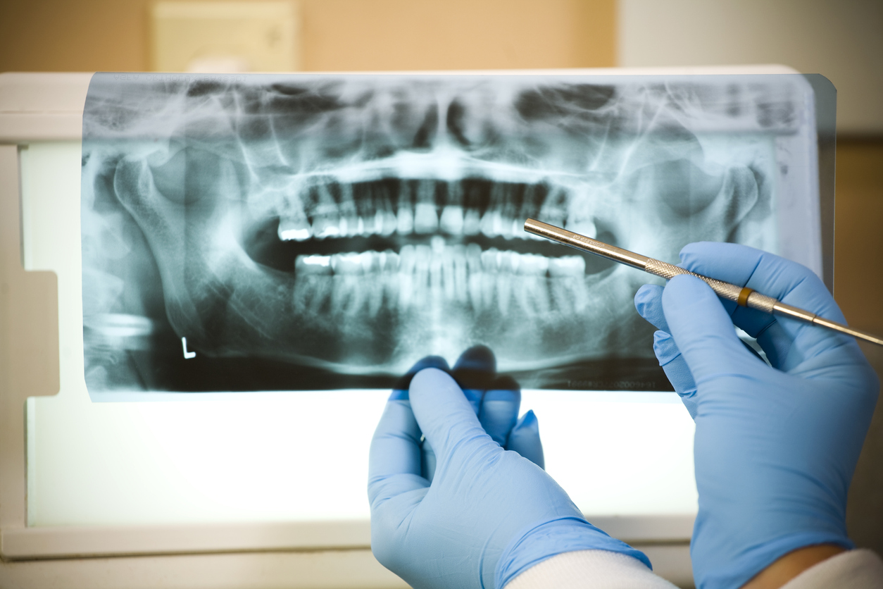 How Do I Know if I Need a Root Canal?