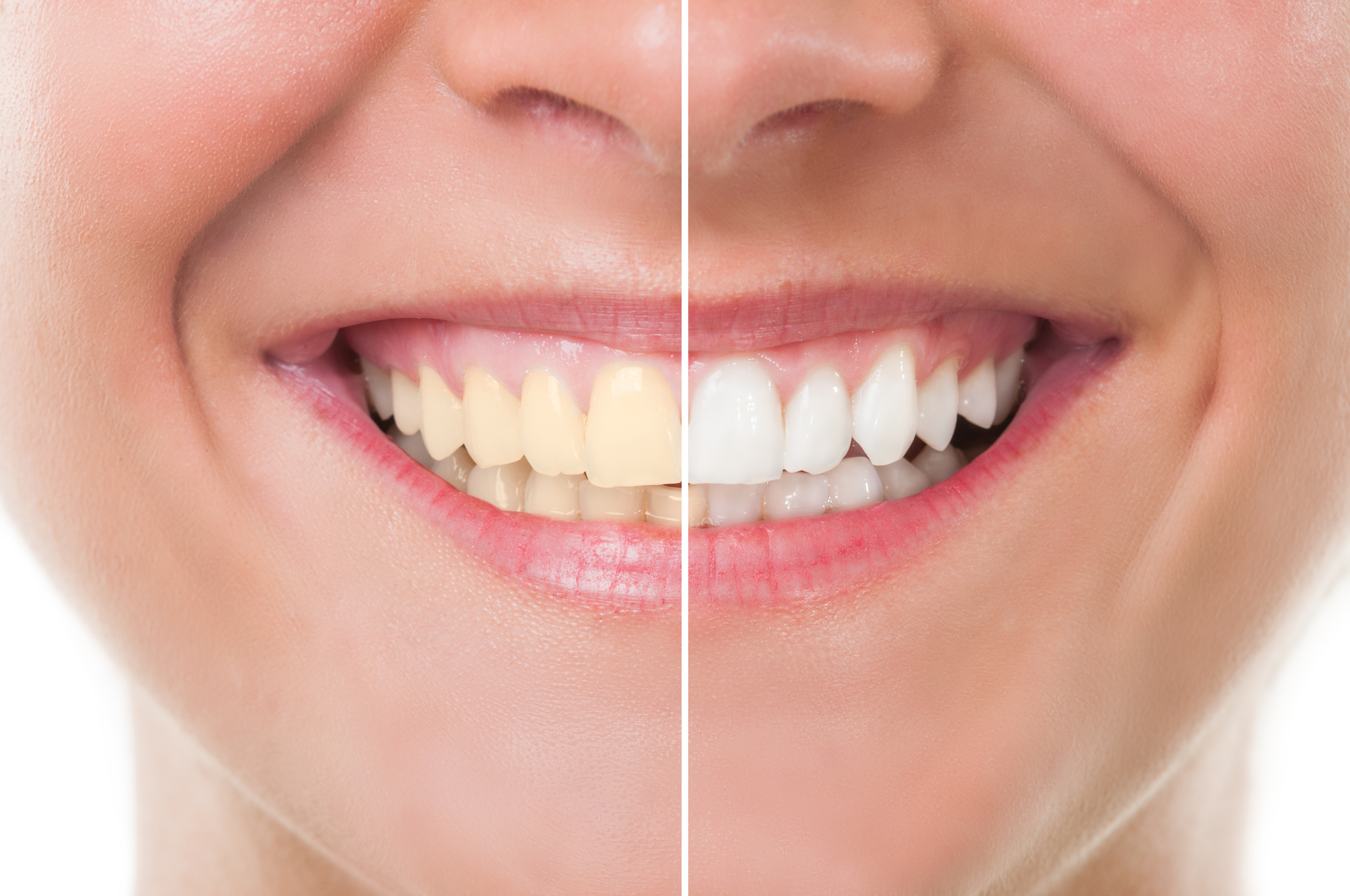 Teeth Whitening: Facts vs Fiction